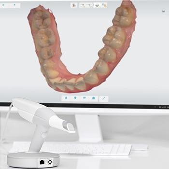 digital display of teeth