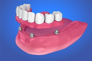 bottom row implant