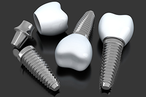 three dental implants