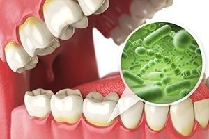 illustration of bacteria on teeth