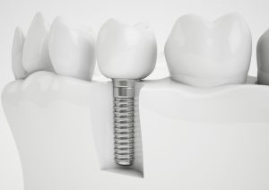 implant dentist in Rocky River