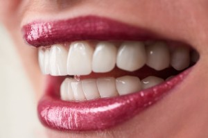 Porcelain veneers make beautiful smiles.